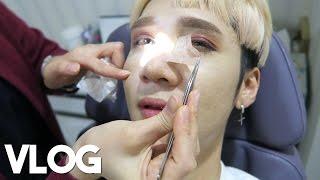 A Week After Surgery || Vlog - Edward Avila