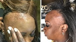 Who Did This?! Weaves Severely Damage Hair   Amazing Hair Transformations