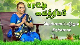 வெள்ளைப்படுதல் பற்றி இனி கவலை வேண்டாம்! || #பாட்டி_வைத்தியம் ||vellai paduthal treatment in tamil ||