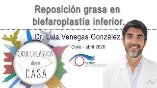 Reposición grasa en blefaroplastía inferior, Dr. Luis Venegas G.