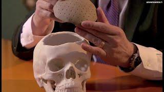 Des greffes osseuses innovantes