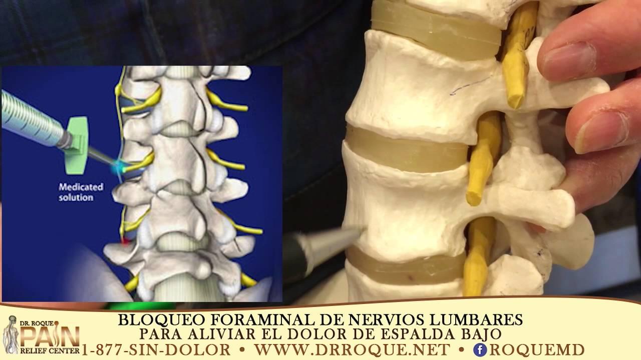Selective Lumbar Foraminal Block L2 L3 Youtube