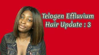 Telogen Effluvium Hair Update 3 (Switching Things Up)