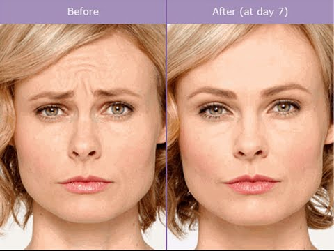Botox In Destin|850 939 5413 | Botox Destin Florida