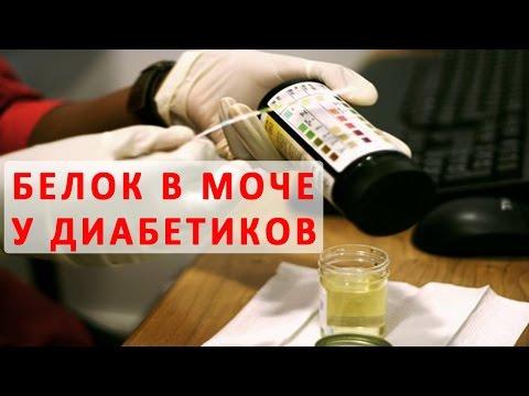 Микроальбуминурия при сахарном диабете