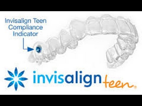 Invisalign Braces Chandler TX