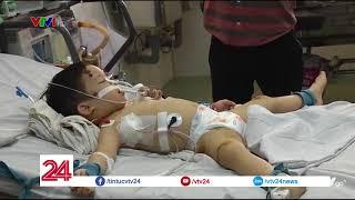 Cấp cứu 2 bé bị chó nhà cắn | VTV24