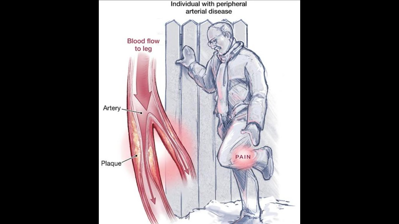Peripheral Arterial Disease - YouTube