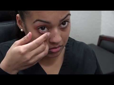 How to Apply Ointment to the Eyes and Eyelids