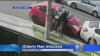 74-Year-Old Rabbi Attacked While Walking In Fairfax District