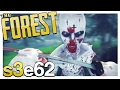 NEW TRIBE & CASTLE BASE RUINED? | The Forest Gameplay S3E62 (Update v0.54)