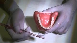 歯磨きの基本となるスクラビング法の解説です。 もうすでに歯科医院にて...