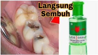 Alhamdulilah cara mengobati sakit gigi berlubang dan gusi bengkak pada video ini bisa bermanfaat. ba.