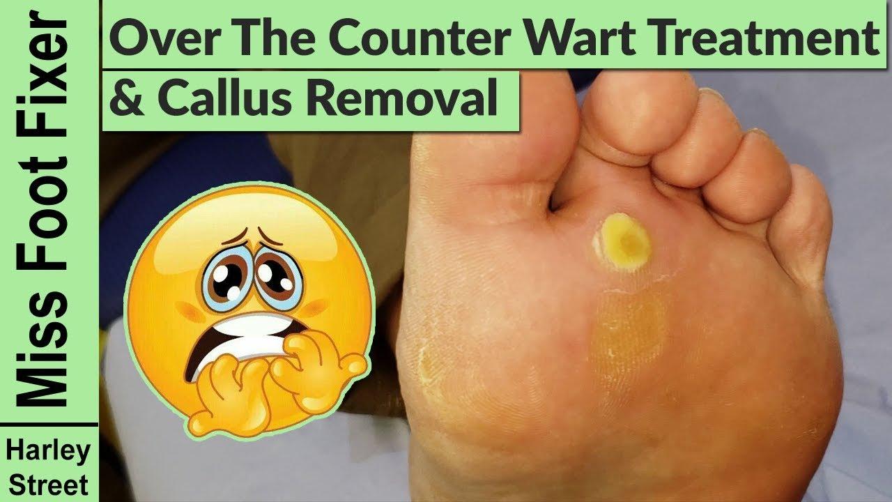 Wart treatment otc