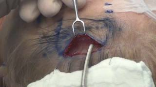 Temporal Brow Lift 2 Galea div subq dissect