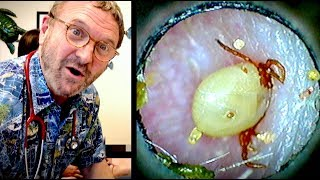 WE FOUND A TICK IN HIS EAR! (it was moving around)    Dr. Paul