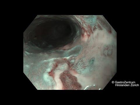 terapia para el cáncer de próstata icd 10