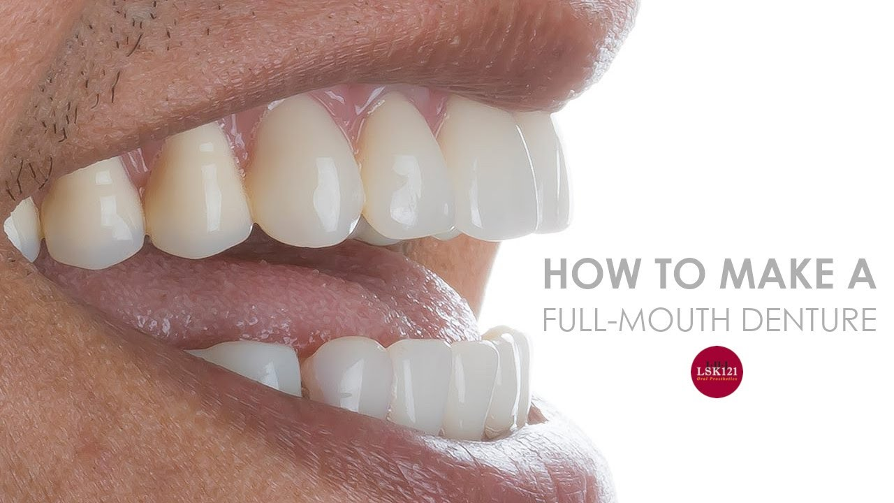 How To Make a Full Denture Start To