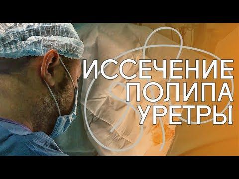 Иссечение полипа уретры. Пациентка 52 лет