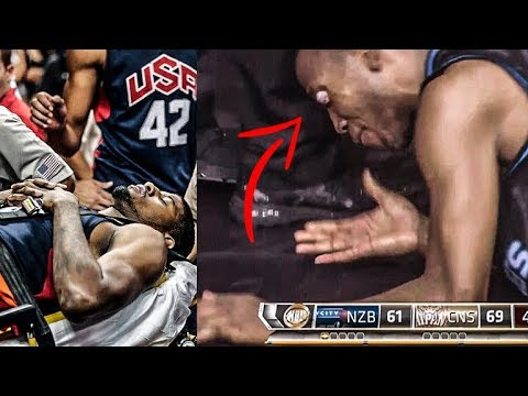 The Worst Basketball INJURIES Of All Time