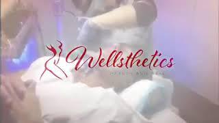 Osvaldo Rios en Wellsthetics (1)