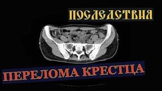 перелом крестца и подвывих копчика на расшифровке КТ ценой 1500 руб