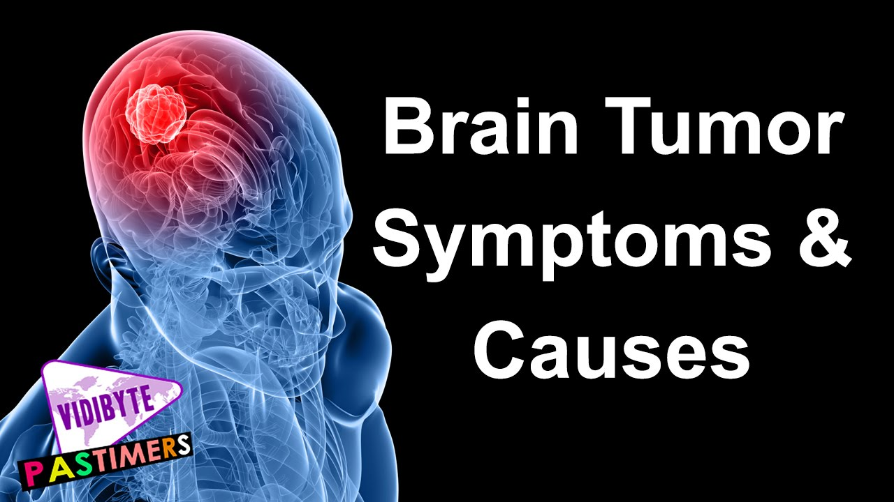 BRAIN CANCER CAUSES EPUB
