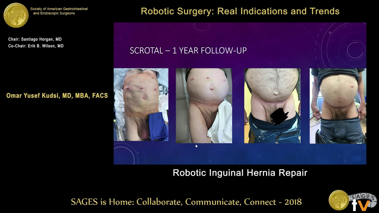 Robotic inguinal hernia from the SAGES Video Library