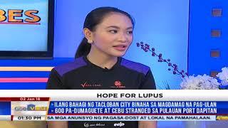 ALAMIN: Mga sintomas ng lupus, bakit ito mahirap matukoy
