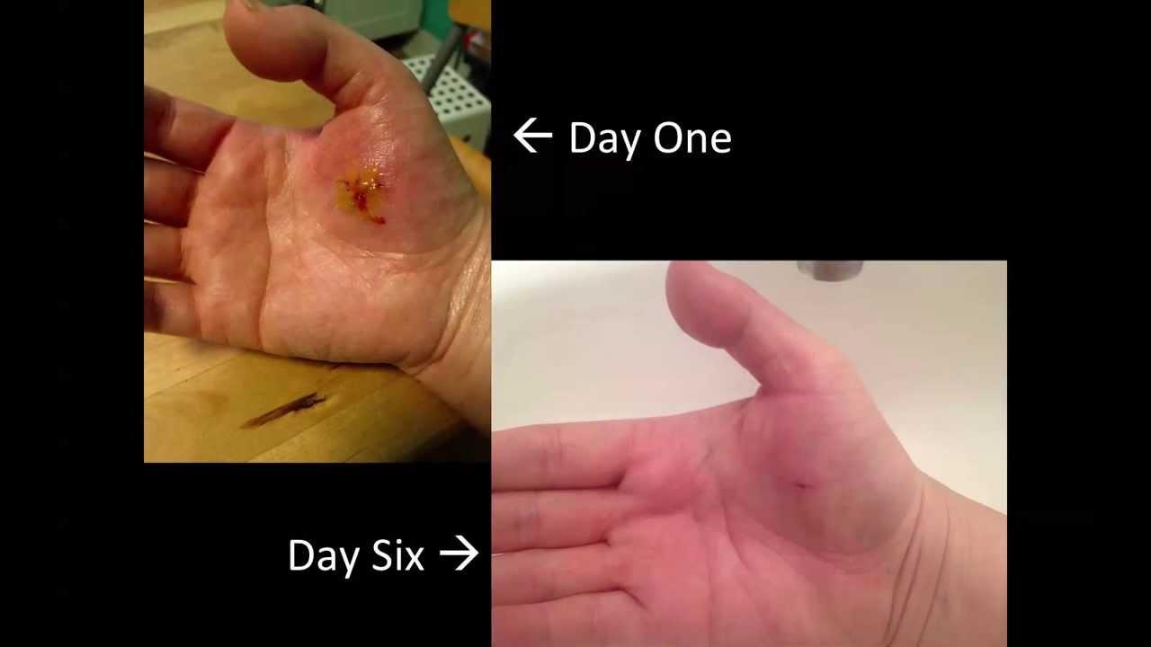 Dog Bite Wound Healing