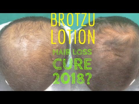 Brotzu Lotion: The Bald Cure in 2018?