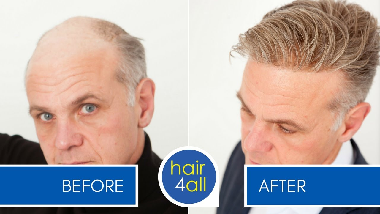 Before And After Results Of Our Non Surgical Hair