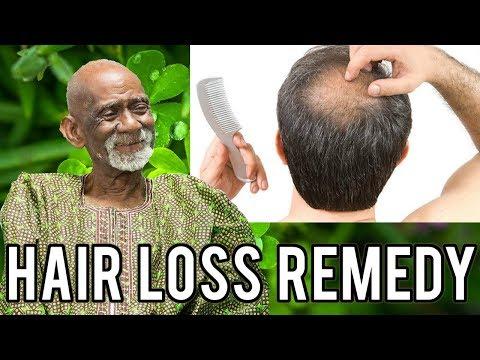 Dr Sebi - Natural Herbal Remedy For Hair Loss
