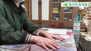 제너지한의원 손 퇴행성관절염/ 손목 손가락통증 한방치료…