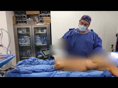 The Wonders of BodyTite of the Abdomen and Liposuction Revision with Dr. Hughes