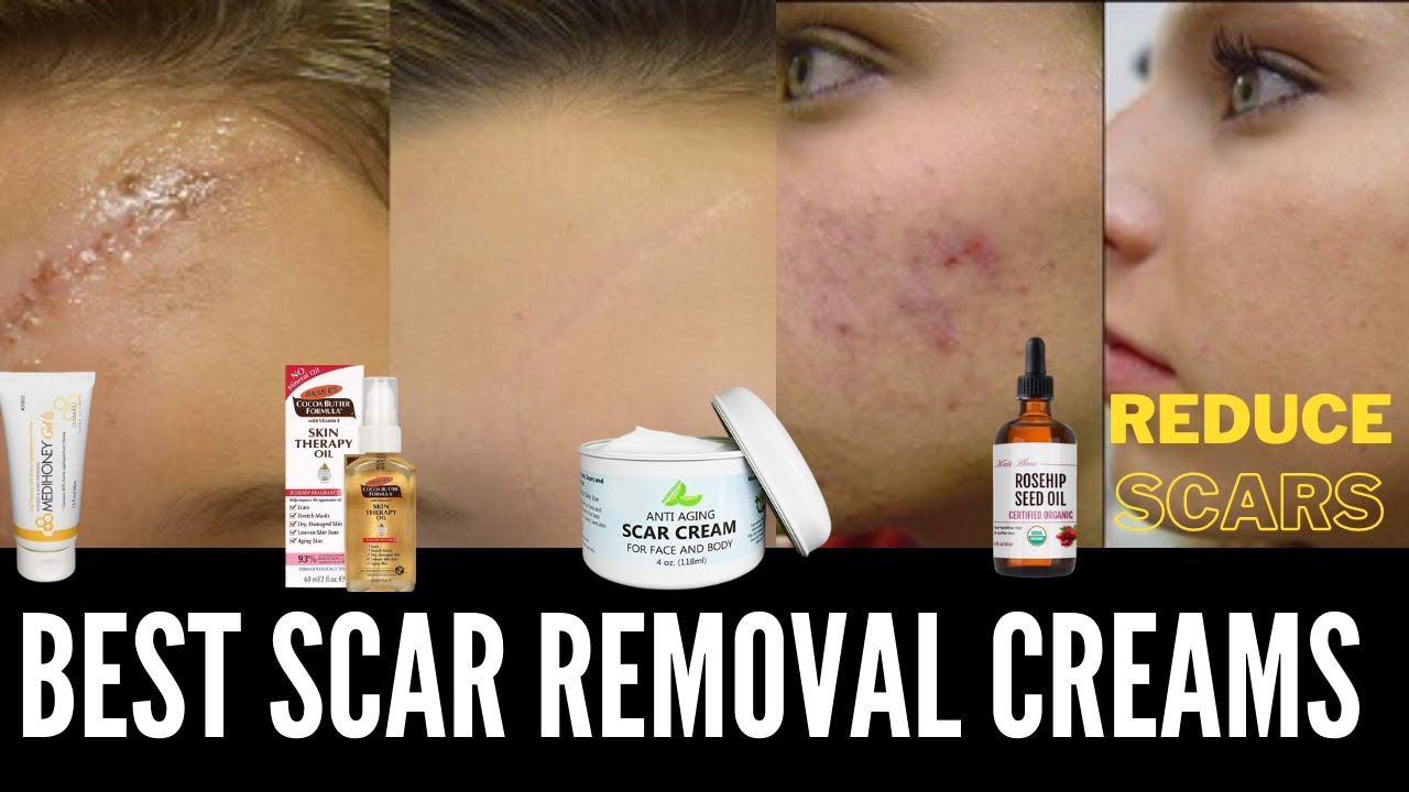 How To Get Rid Of Scars Fast Pimple Acne Marks And Best Scar Removal Creams Tamil Youtube