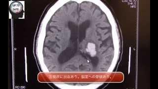 視床出血の画像診断(脳出血、脳室穿破)【画像診断チャンネル】