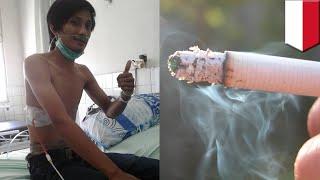 Akibat merokok paru paru pria ini kempes dan dipasangi selang TomoNews