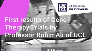 First results of Gene Therapy Trials by Professor Robin Ali of UCL