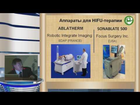 Уренков С Б - HIFU терапия рака предстательной железы