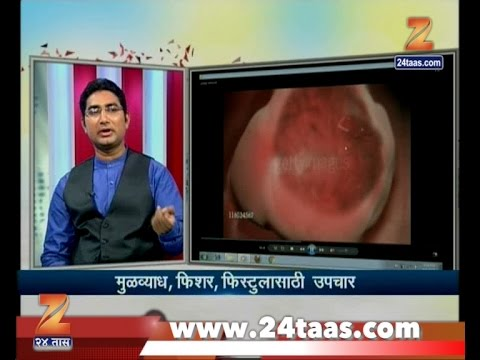 Hitguj | Dr Sudhir Udamale | On Piles Fissure Fistula And Ayurved Treatment | 4th April 2017