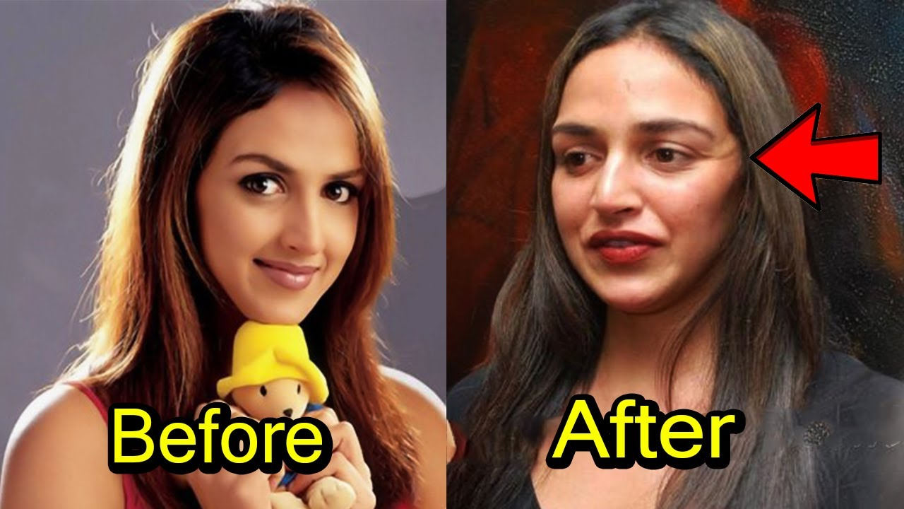 top 8 plastic surgery disaster of bollywood actress | 2017 - youtube