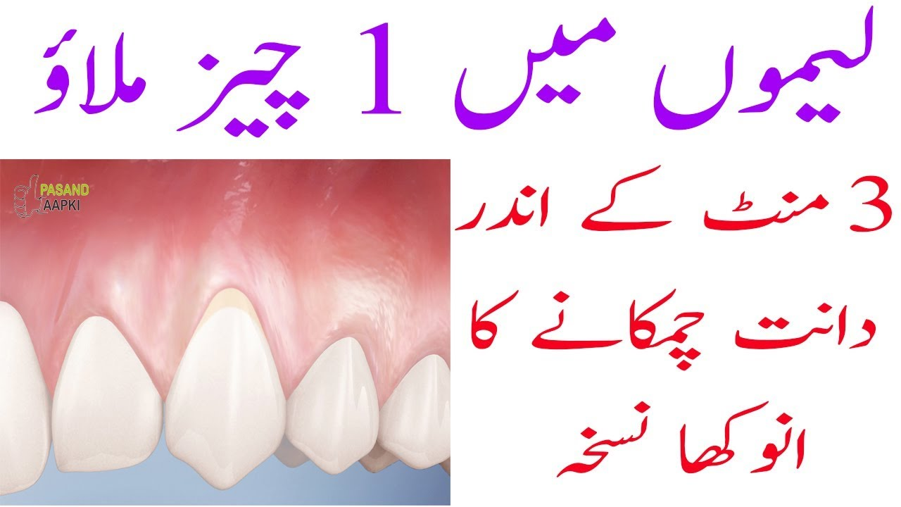 teeth : teeth whitening : dentist of full information in urdu with Dr Khurram:Pasand Aapki