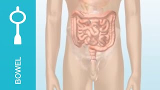 Bowel incontinence and chronic constipation