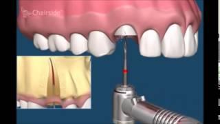 Хирургическая стоматология  Как удалять зубы  Примеры удаления зубов  Сложное удаление(В этом видео мы вам расскажем как правильно удалять зубы. Поговорим как о легком удалении с помощью только..., 2015-05-10T08:59:26.000Z)