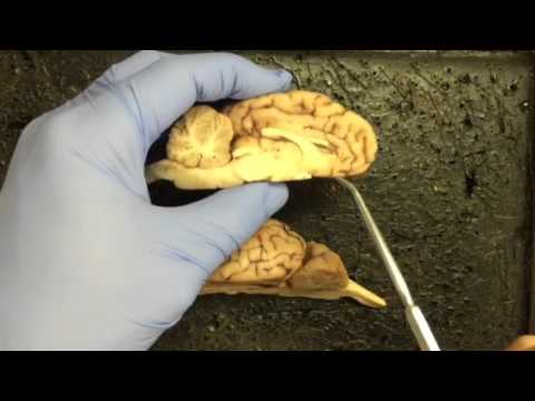 Sheep brain - internal structures