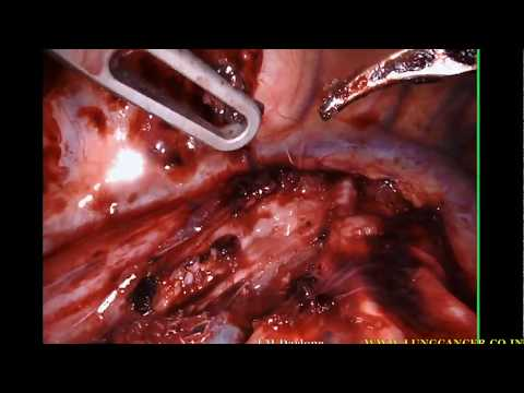Robotic Xi Esophagectomy x 2 speed unedited, Delhi, Noida, NCR, India.