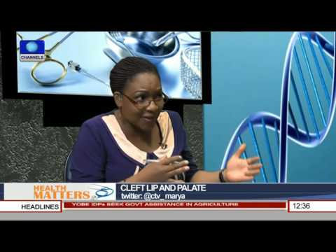 Health Matters: A Look At Cleft Lip And Palate Pt. 1