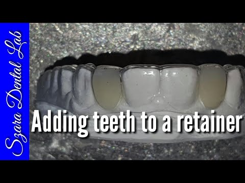 How to add Teeth to Clear Retainer