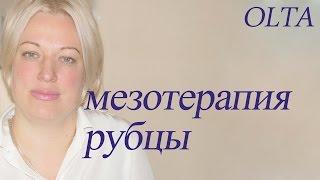 курсы по мезотерапии СПб рубцы, часть 13, курсы косметолога, 8812248 99 38, олта